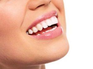 La dentisterie esthétique : sourire éclatant