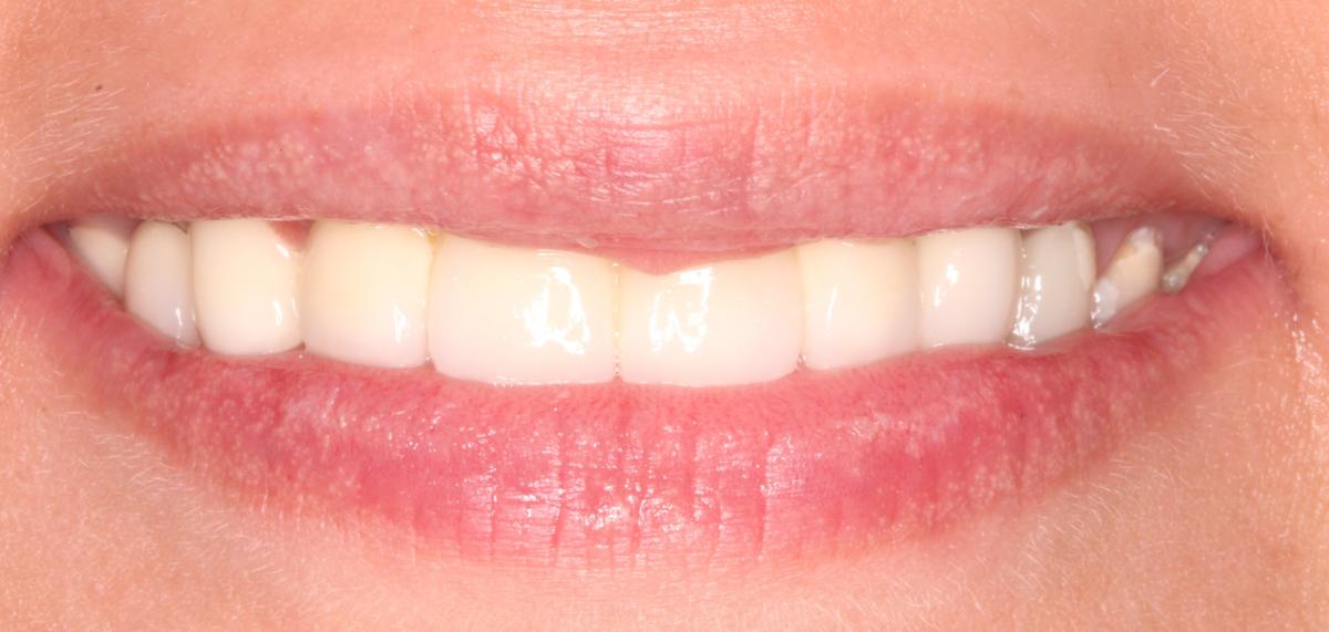 Réalisations cliniques : bridge céramo métallique sur implant