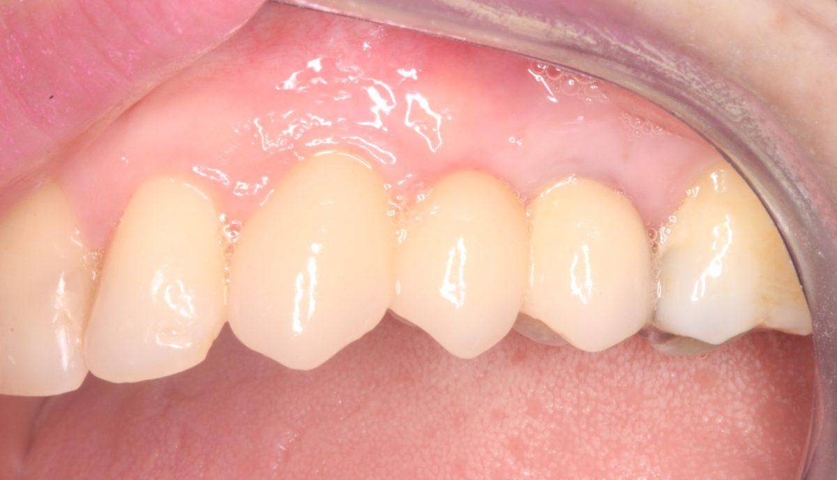 Réalisations cliniques : Extraction, pose immédiate d'implant et bridge en zircone de trois éléments