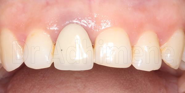 Réalisations cliniques : Zircone sur implant