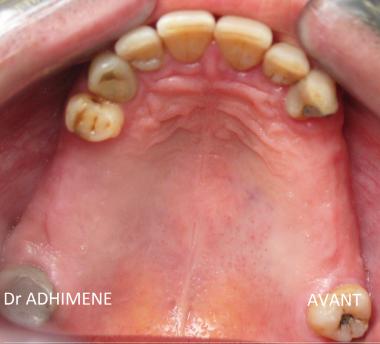 Réalisations cliniques : Edentement maxillaire postérieur bilatérales