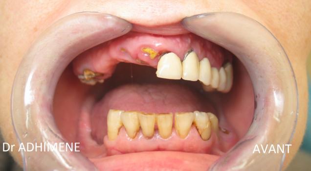 Réalisations cliniques : Edentement complet maxillaire