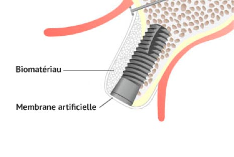Chirurgie pré-implantaire : greffe d'apposition