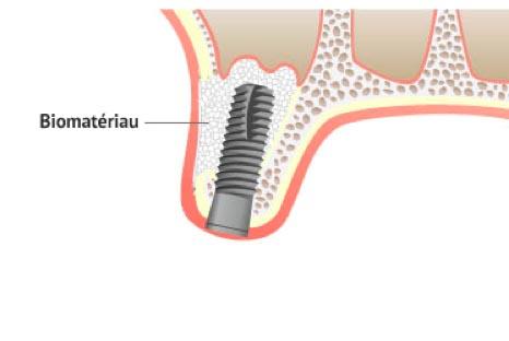 Chirurgie pré-implantaire : greffe de sinus