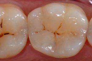 Odontologie conservatrice : après