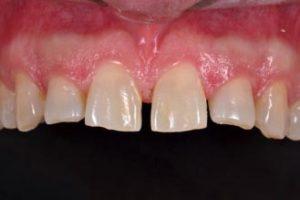 Facette dentaire : avant pose des facettes