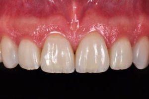 تلبيسات الأسنان: الكمال الجمالي