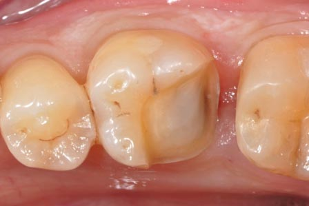 Odontologie conservatrice Inlay : avant