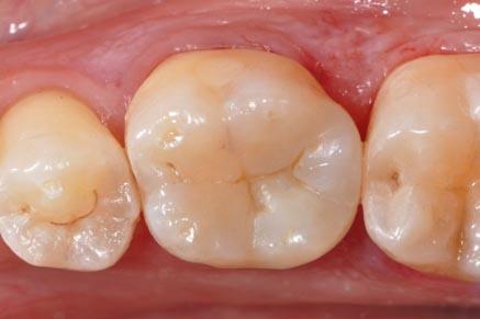 Odontologie conservatrice Inlay : après