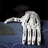 Prothèse du futur