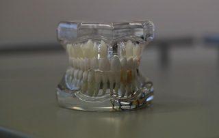 Univers dentaire et impression 3D