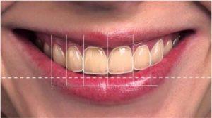 La dentisterie esthétique : Réhabilitation complète du sourire
