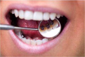 Orthodontie linguale