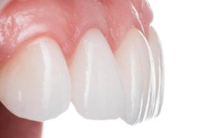 Blanchiment des dents en fauteuil