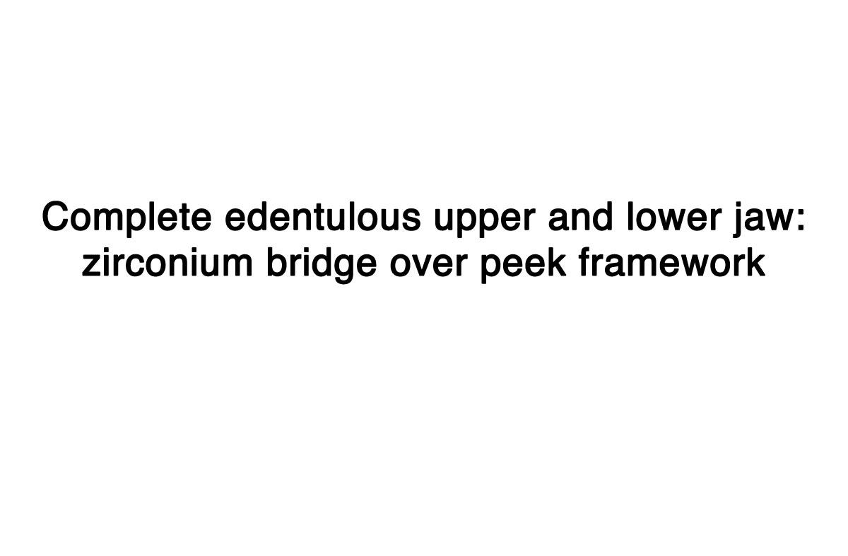Complete-edentulous-upper