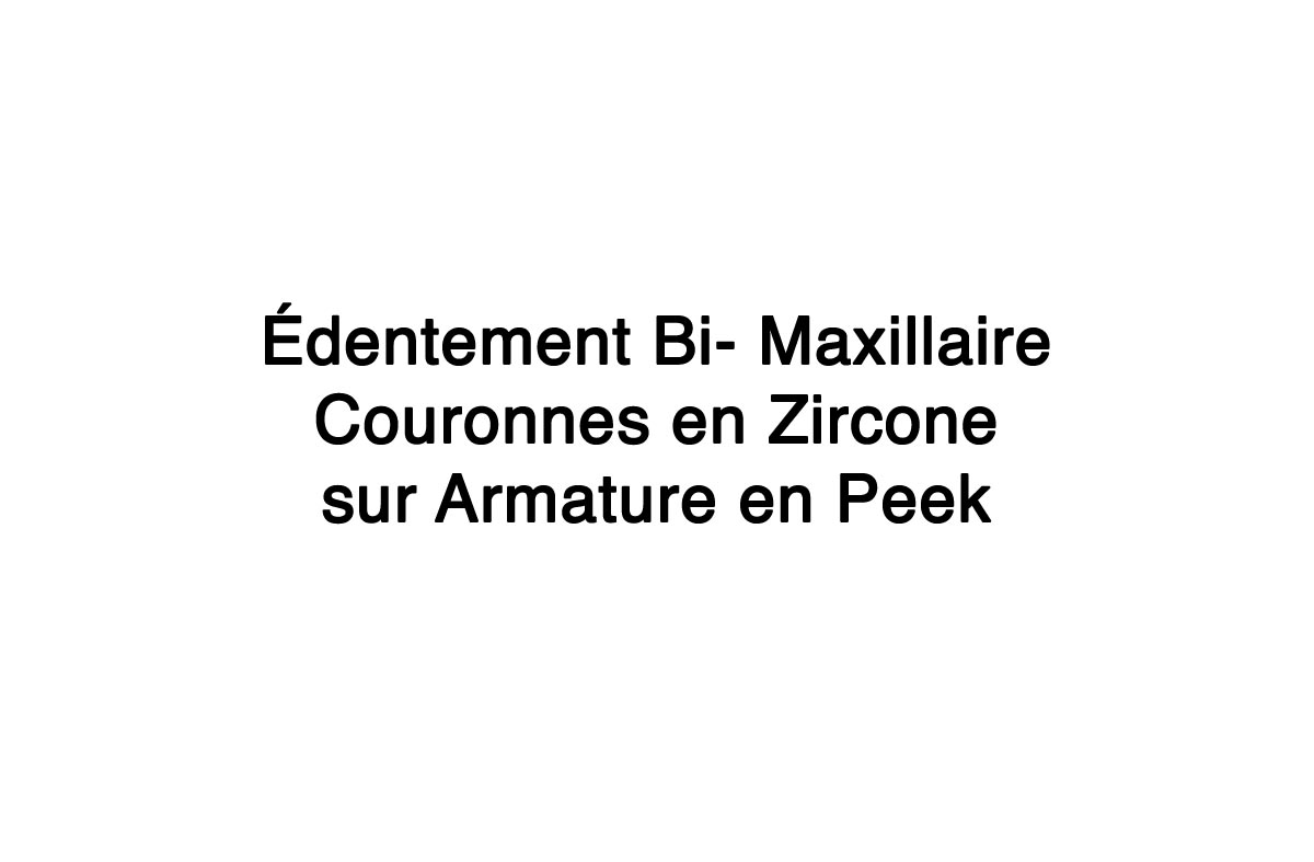 Edentement-Bi-Maxillaire-Couronnes-en-Zircone-sur-Armature-en-Peek-7