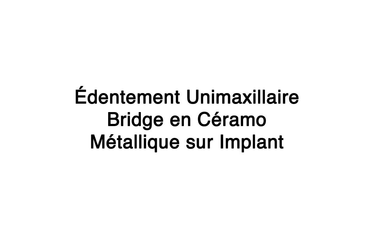 Edentement-Unimaxillaire-bridge-ceramo-metallique-sur-Implant-5