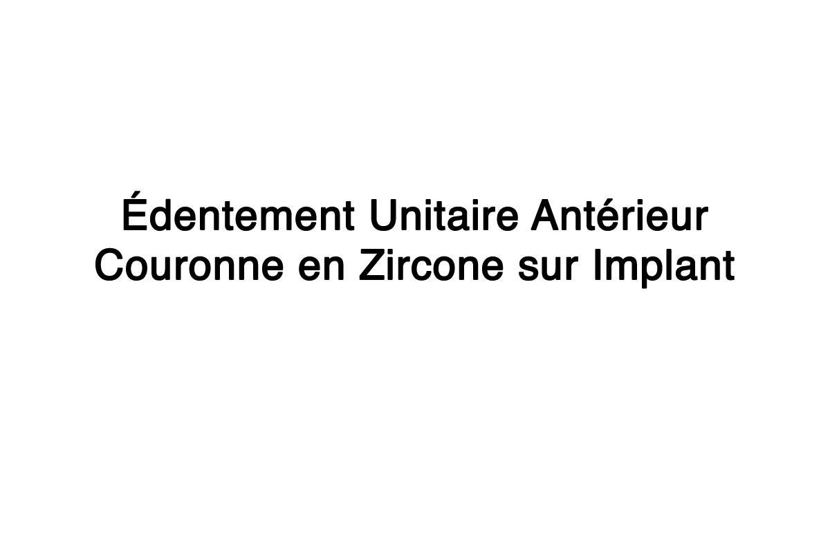 Édentement Unitaire Antérieur : Couronne en Zircone sur Implant