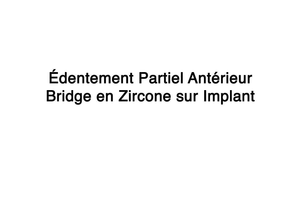 Édentement Partiel Antérieur : Bridge en Zircone sur Implant