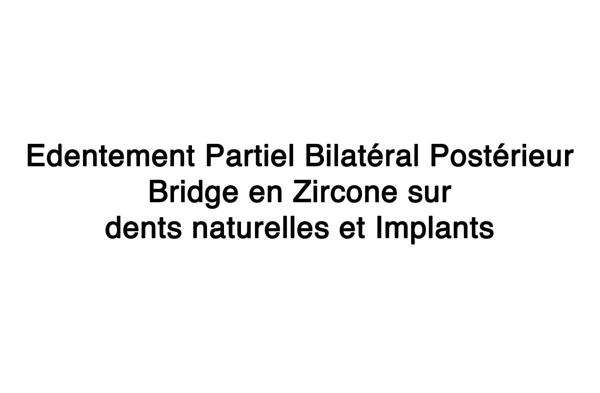 Edentement-partiel-bilateral-posterieur