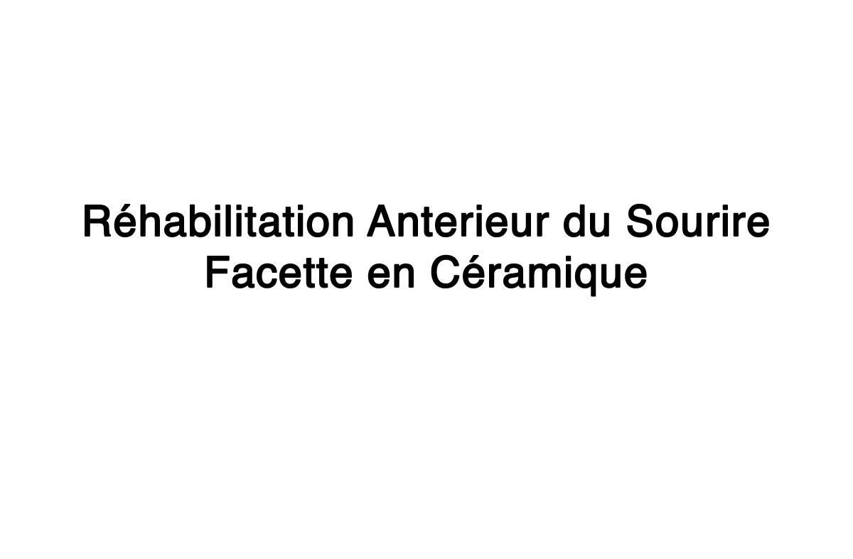 Rehabilitation-anterieur-du-sourire