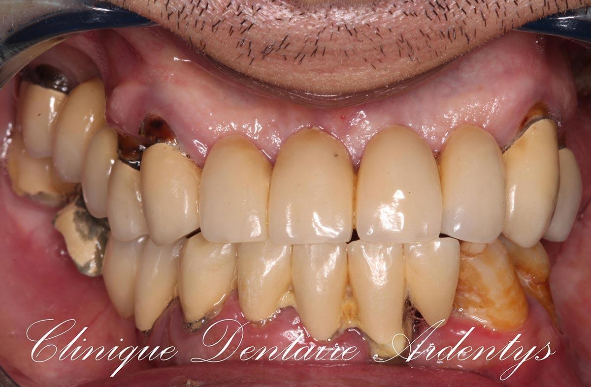 Edentement-Bi-maxillaire-6