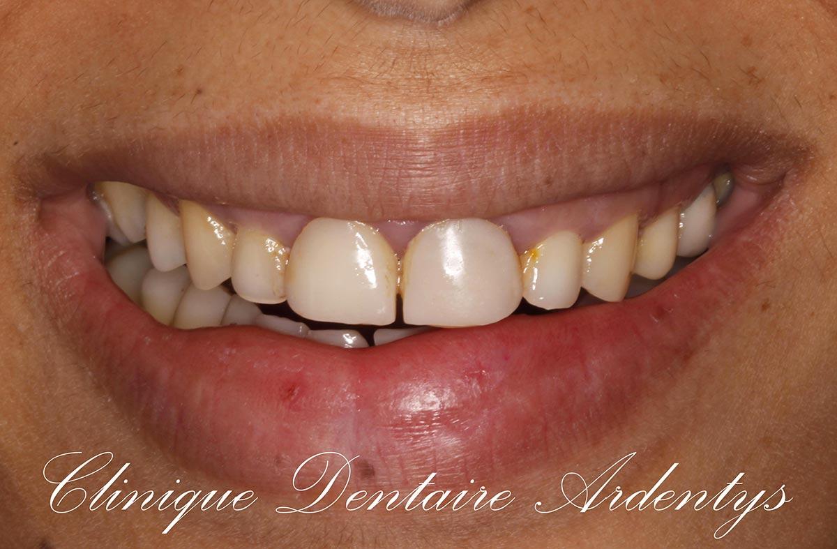Rehabilitation-anterieur-du-sourire 1