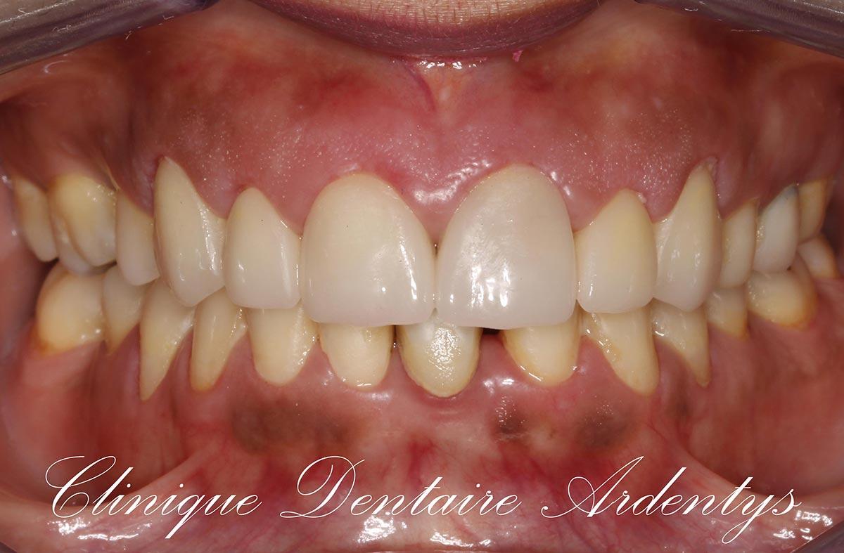 Rehabilitation-anterieur-du-sourire 2