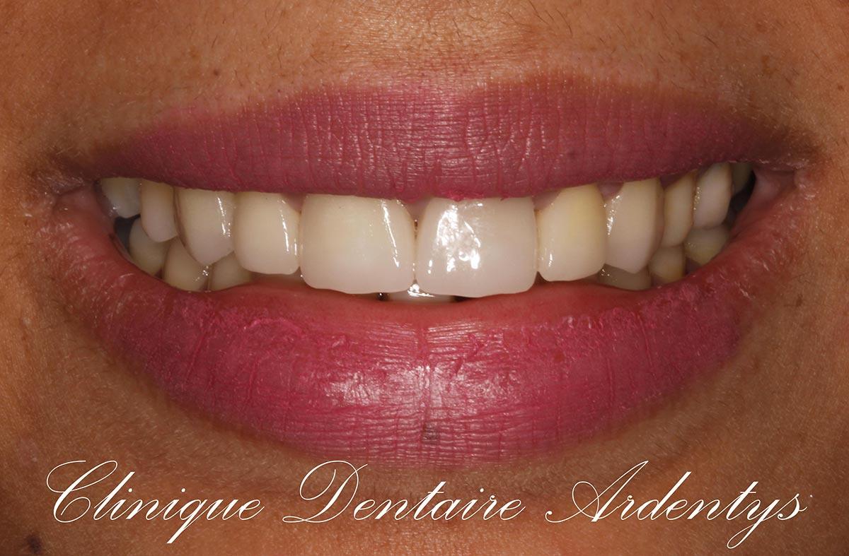 Rehabilitation-anterieur-du-sourire 3