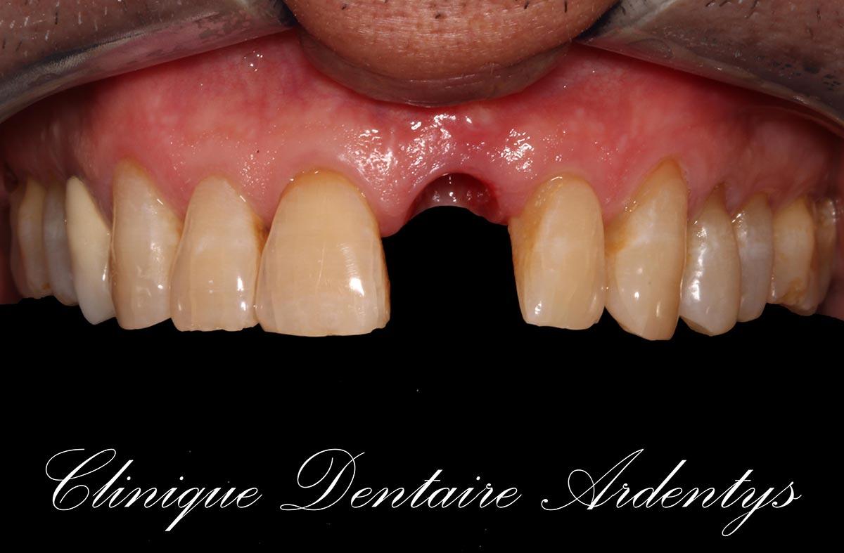 Édentement Unitaire Antérieur : Couronne en Zircone sur Implant 1